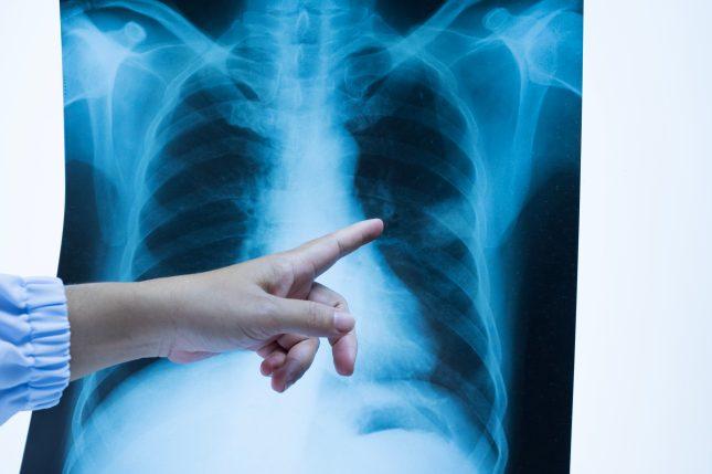 רופאה בודקת צילום ריאות (אילוסטרציה)