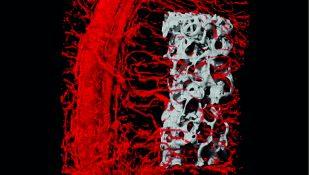 סריקה תלת-ממדית הממחישה את חדירת כלי הדם אל תוך העצם המושתלת בתוך מתלה הרקמה. צילום: דוברות הטכניון