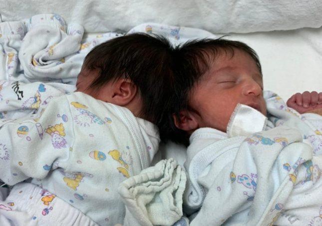 התאומות טרם הניתוח. צילום: בית החולים סורוקה
