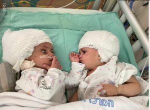 התאומות לאחר הניתוח. צילום: בית החולים סורוקה